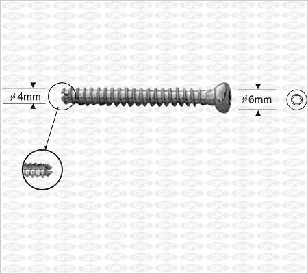 Petite vis d'os spongieux canulée 4,0mm, à tête creuse hexagonale, entièrement filetée.
